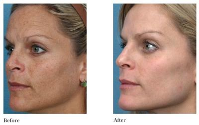 Chemical Peel, Microdermabrasion