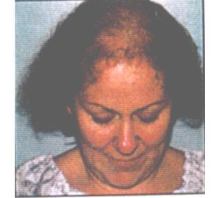 Hair Loss..We can help!